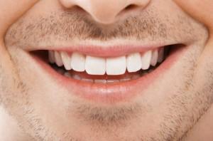 denti fissi in poche ore