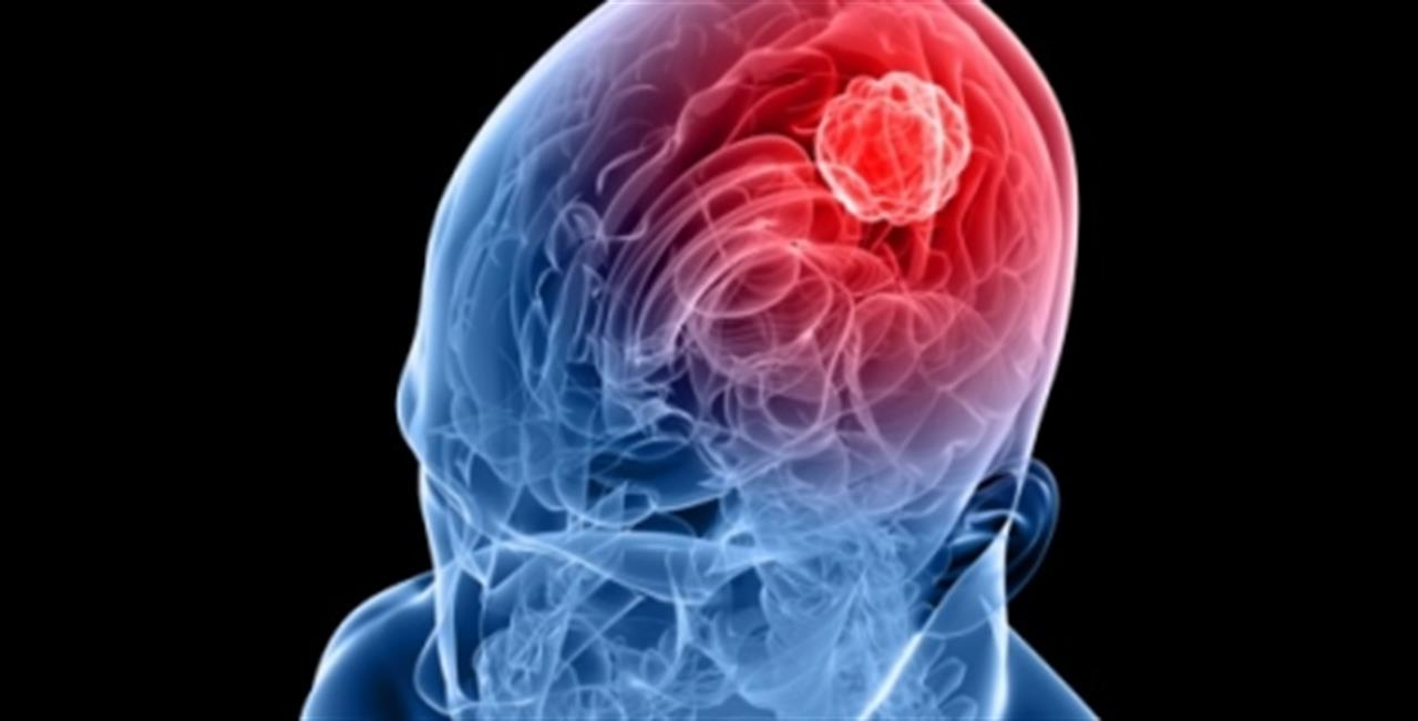 Psicosi meningite: non confondetela con l'influenza