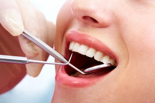 dentista costi torino