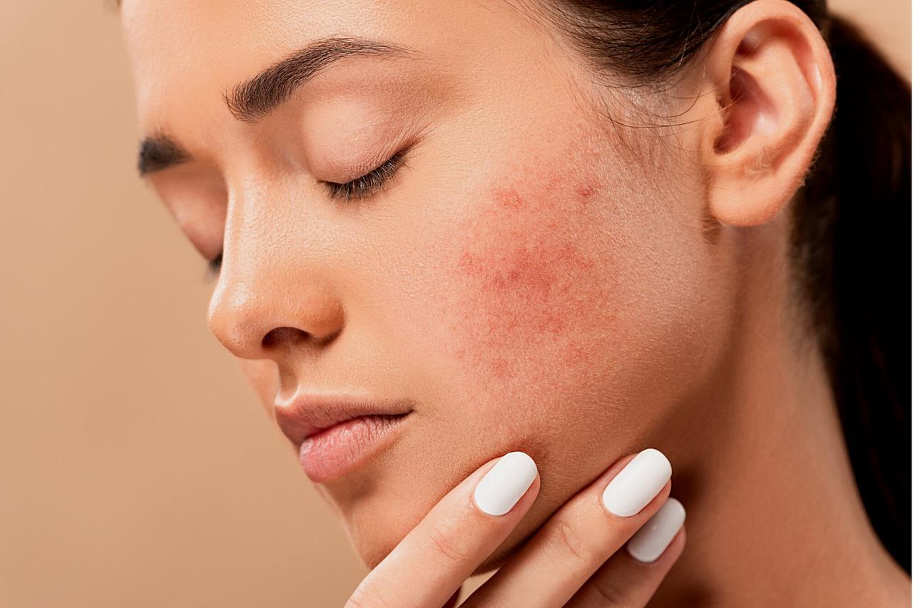 Cosmetici bio e naturali per preparare la pelle all'inverno