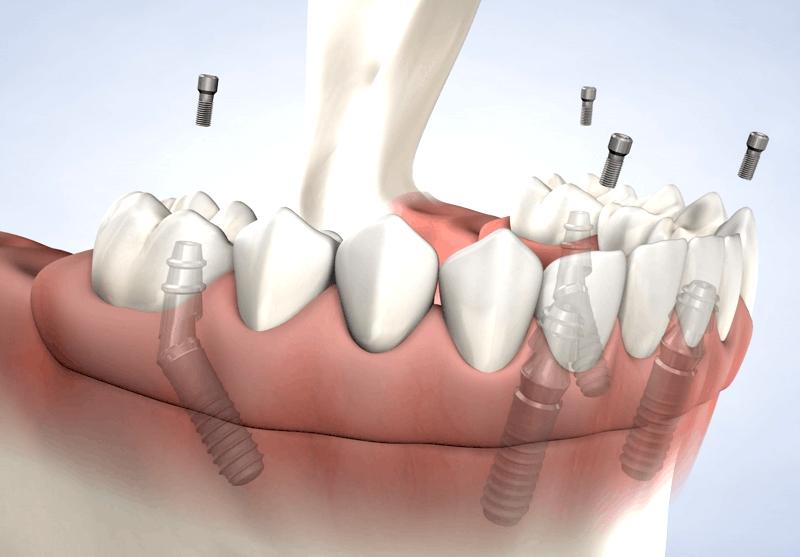 SFP Dental Service: studio dentistico a Brescia per impianti